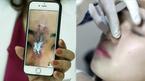 Cô gái trẻ ở TP.HCM hoại tử da sau nâng mũi