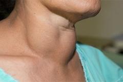 4 người cùng gia đình bị ung thư tuyến giáp, 6 dấu hiệu bệnh không được bỏ qua