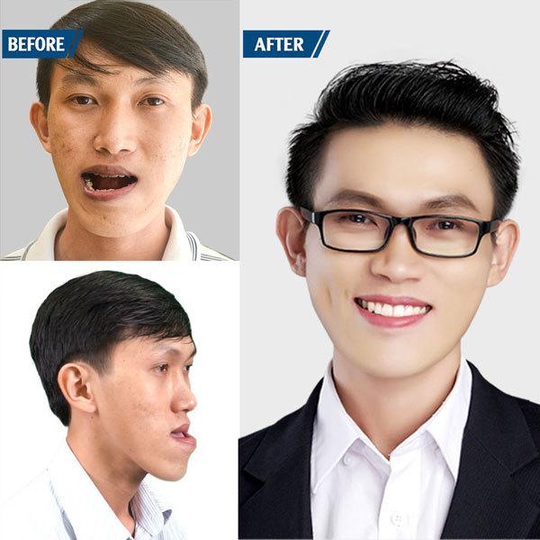 mặt lưỡi cày,phẫu thuật thẩm mỹ