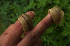 Chàng trai 27 tuổi sau hôn mê 420 ngày đã chết vì ăn ốc sên