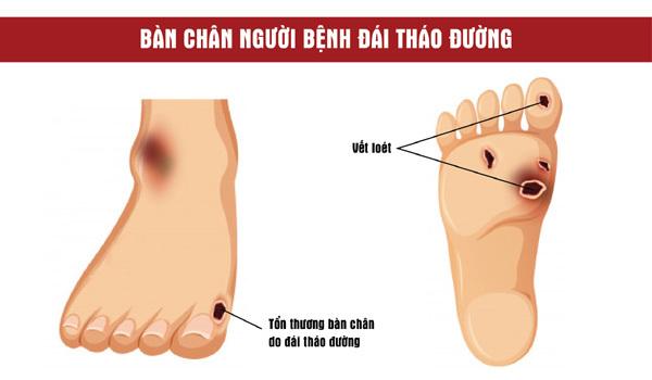 5 sai lầm chăm sóc bàn chân người tiểu đường mùa lạnh