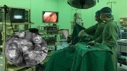 Người phụ nữ Sài Gòn mang khối u hiếm gặp nặng hơn 3 kg