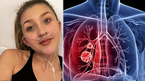 Mắc căn bệnh người già, cô gái 19 tuổi ghép tạng 3 lần để được sống