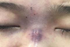Cô gái ở TP.HCM mù mắt sau khi bạn trai tự tay tiêm filler nâng mũi