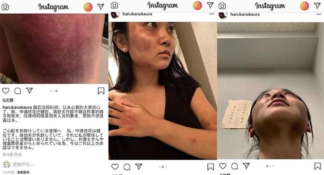 Mỹ nam Trung Quốc bị tẩy chay vì đánh đập dã man bạn gái người Nhật