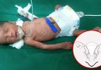 Bé gái châu Á đầu tiên ra đời nhờ cấy ghép tử cung của bà ngoại