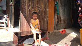 Cậu bé ung thư sống trong khu ổ chuột giữa lòng Sài Gòn