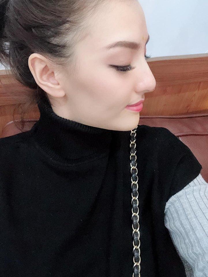 Hồng Quế sửa mũi để xinh đẹp và 'đổi vận'