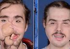 Chàng trai mang khuôn mặt của người khác sau 25 giờ phẫu thuật