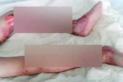 Mẹ tử vong, con gái bị bỏng nặng hai chân khi vừa cắm điện quạt máy