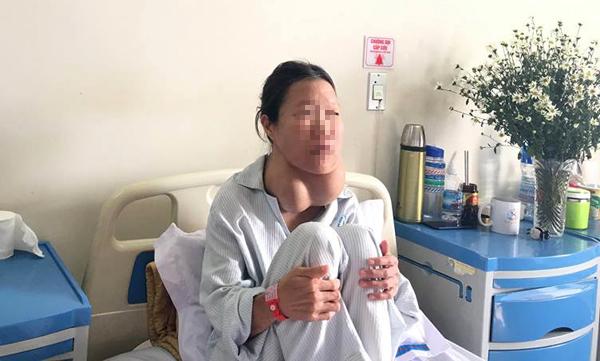 Cổ người phụ nữ biến dạng vì đeo 2 'quả bưởi' suốt 20 năm