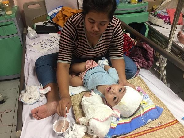 hoàn cảnh khó khăn,não úng thủy,bệnh hiểm nghèo,từ thiện vietnamnet