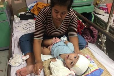 Bé trai 1 tuổi ba lẫn phẫu thuật vì não úng thủy