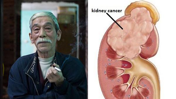 Những điều ít biết về căn bệnh ung thư thận diễn viên Ngọc Căn mắc phải