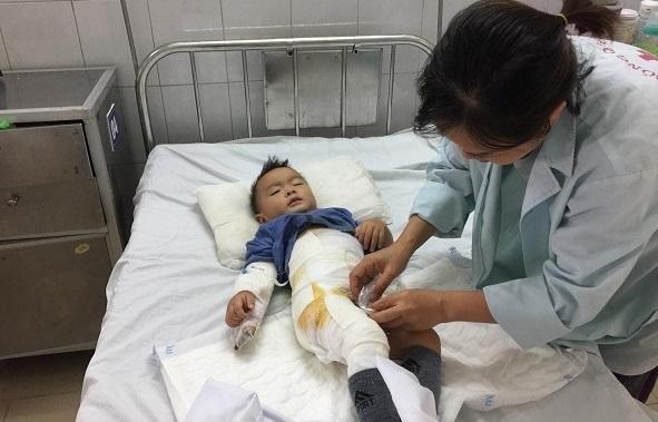 Ngã vào nồi canh nóng, bé trai 14 tháng tuổi bỏng nặng