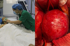 Bác sĩ tròn mắt vì mạch máu nữ bệnh nhân 36 tuổi phình to như cái bát