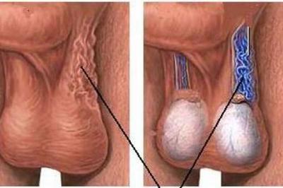 Căn bệnh phổ biến khiến các quý ông không có tinh trùng