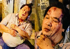 Nghệ sĩ hài Hoàng Mập bị tông xe phải nhập viện