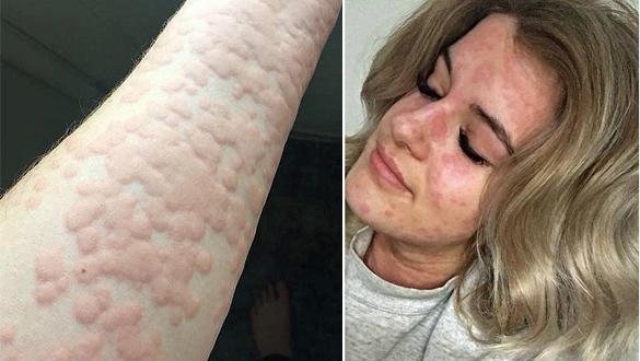 Cô gái nổi tiếng vì 'dị ứng mùa đông', bác sĩ lắc đầu trước bệnh hiếm