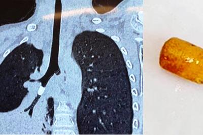 Bé trai 6 tuổi xẹp nửa lá phổi vì hạt nhựa khô
