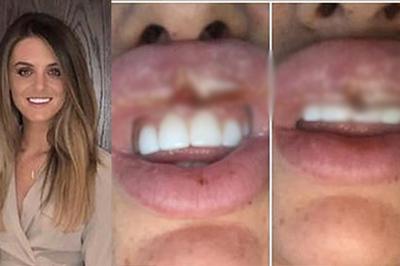 Cô gái suýt phải cắt bỏ môi vì theo đuổi trào lưu tiêm botox