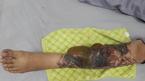 Cô gái trẻ bị hoại tử chân, lộ cả gân vì xoá hình xăm bằng laser