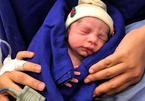 Cận cảnh em bé đầu tiên ra đời từ tử cung người đã chết