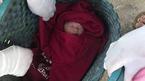 Trẻ sơ sinh bị bỏ rơi, côn trùng cắn chi chít trên mặt