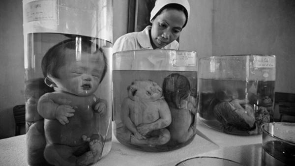 Hơn 40 năm sau chiến tranh, Việt Nam vẫn còn hơn 3 triệu nạn nhân chất độc da cam