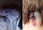 """Đau đầu tưởng cúm, đi khám mới phát hiện não đang """"trôi xuống"""" cổ"""