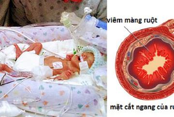 Sinh non nặng vẻn vẹn 450 gam và 'không có ruột', cậu bé vẫn sống sót kỳ diệu