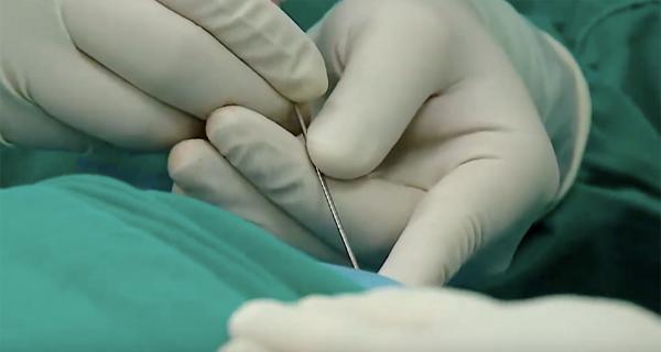 Mũi tiêm giúp bệnh nhân thoát vị đĩa đệm, đau cột sống hết đau