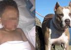Mẹ kể lại giây phút con trai bị chó pitbull cắn nát khuôn mặt trong đau đớn