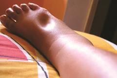 Đi bộ đau và sưng chân có thể mắc căn bệnh gây đột tử