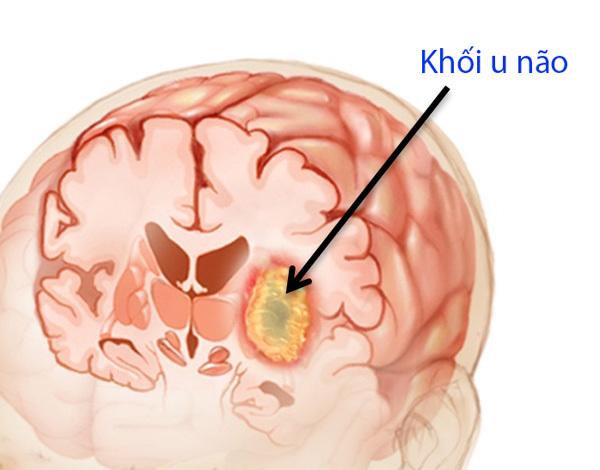 khối u,u ác tính,u tuyến yên,u não