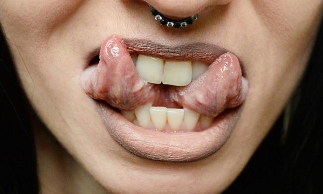 Trào lưu tách lưỡi của giới trẻ với những biến chứng khủng khiếp