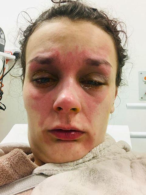 Luộc trứng bằng lò vi sóng, cô gái 19 tuổi suýt bị mù vĩnh viễn