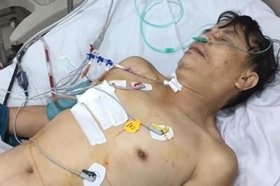 Cứu sống nạn nhân bị vỡ tim, dập ngực sau tai nạn giao thông