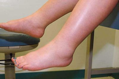 3 dấu hiệu trên bàn chân cảnh báo thận đang dần suy kiệt