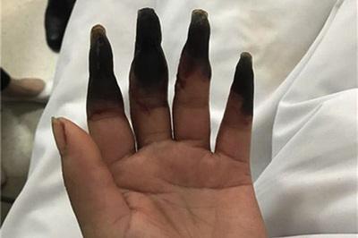 Hậu quả kinh hoàng từ một vết đứt tay trong khi làm việc nhà