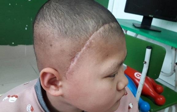 hoàn cảnh khó khăn,ung thư,bệnh hiểm nghèo,từ thiện vietnamnet