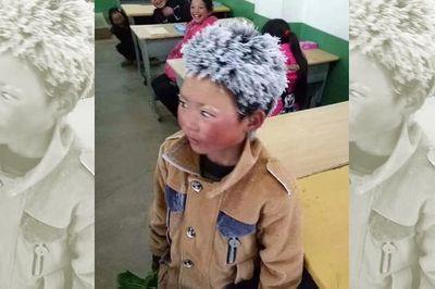 """Cậu bé tóc đóng băng đổi đời sau một năm nhờ bức ảnh """"dậy sóng"""""""