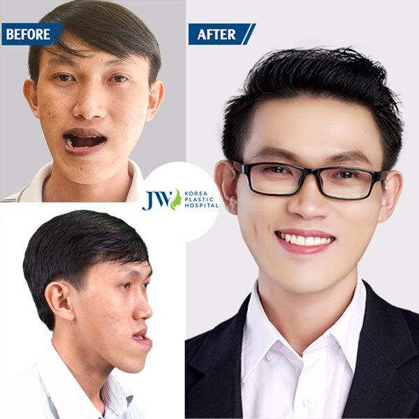 JW đứng đầu bệnh viện thẩm mỹ chất lượng ở TP.HCM