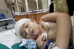 Phẫu thuật thêm 3 lần, bé Mỹ Duyên tiếp tục kêu gọi sự giúp đỡ