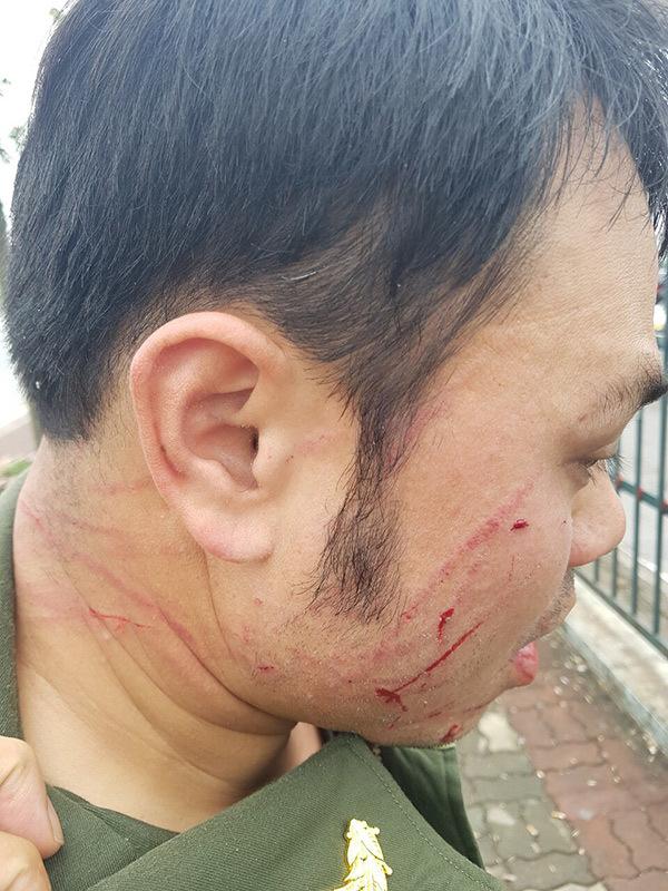 an ninh sân bay,Nội Bài,nhân viên bị hành hung