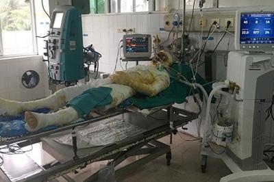 Lấy nước mắm, mỡ trăn chữa bỏng, ruồi nhặng theo bệnh nhân vào tận viện