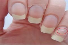 Dấu hiệu cảnh báo bệnh cực kỳ nguy hiểm từ móng tay