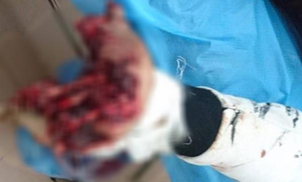Dùng điện thoại đang sạc, nam thanh niên ở Nam Định bị nổ bay bàn tay