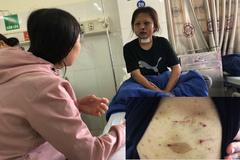 Từ chối tiếp khách, thiếu nữ bị 'trùm điều đào' đánh dã man suốt 2 ngày