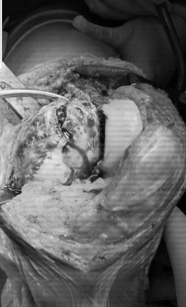 Nữ giáo viên 36 tuổi bị khối u ăn mục xương mà không biết
